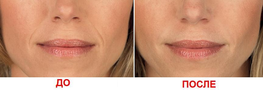 inekcia lica