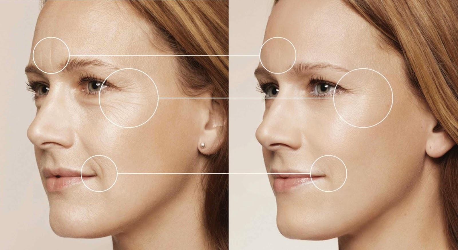 inekcionnaia kosmetologia obzor