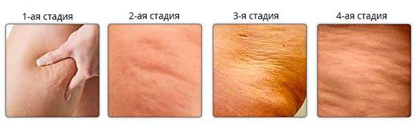 statia lichenie cellyoulita